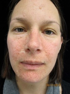 Before Sirolimus treatment