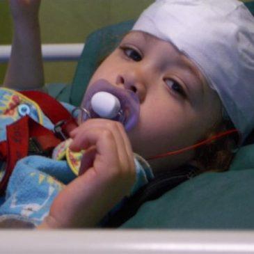 Advances in epilepsy surgery in TSC
