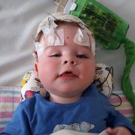New epilepsy treatment added to pharmaceutical benefits scheme